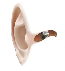 Example of Hearing Aid in Ear
