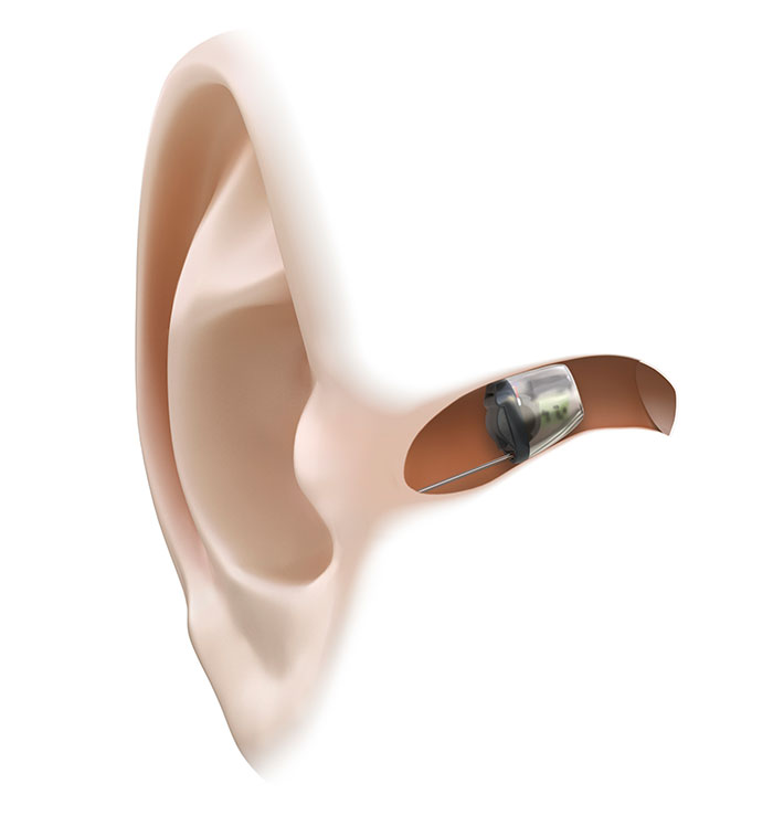 Example of a hearing aid in ear